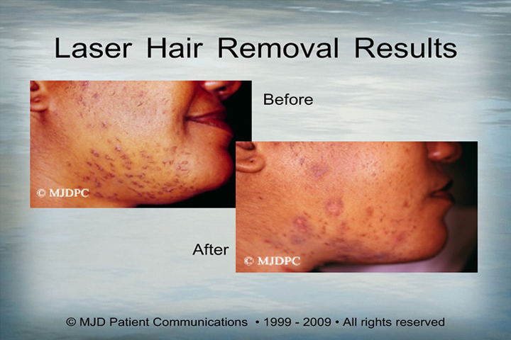 Laser hair removal brooklyn laser hair removal for Laser tattoo removal manhattan
